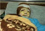 افتتاح بزرگترین بیمارستان سوختگی خاورمیانه در شیراز