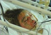 مرگ دلخراش خواهر و برادر خردسال بر اثر واژگونی دیگ آب جوش