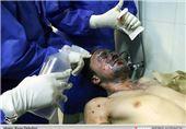 تعداد مرگ بیماران سوختگی در ایران بالاست/ 40 سال عقب هستیم