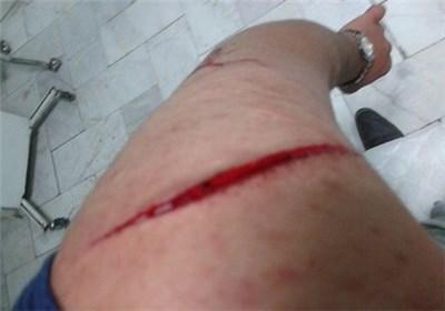 حمله اراذل و اوباش به یک دانشجوی بسیجی/ عکس