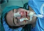 مشکل ترین جراحی بدن کدام است /چرا خانمها در جراحی زیبایی افراط میکنند