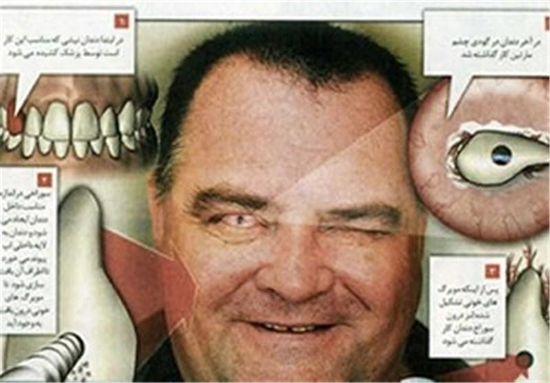 ایمپلنت دندان با بیمه
