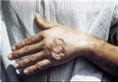 اقدامات کنترل شیوع سالک در آران و بیدگل انجام میشود