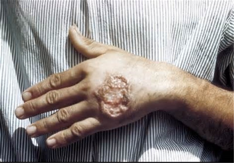 ارتباط بین بیماریهای عفونی و ریزگردها هنوز ثابت نشده است