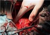 اهدای عضو در مشهد به 4 بیمار جان دوباره بخشید