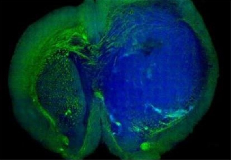 New Laser-Based Tool to Improve Accuracy of Brain Tumor Surgery