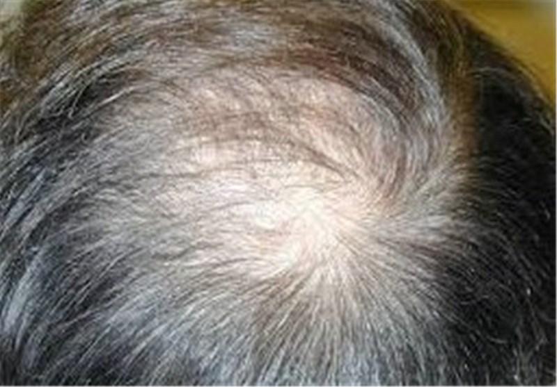 درمان ریزش مو با حنا