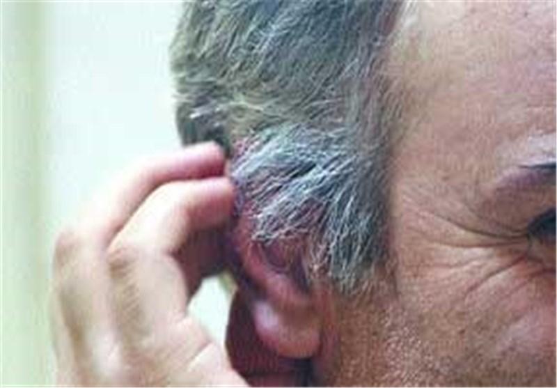 زود سفید شدن مو و روش های درمانی موثر
