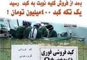 ماجرای فروش کبد 4 میلیاردی/کمترین زمان جراحی پیوند کبد دنیا متعلق به ایران