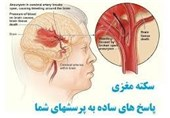 روزانه 200 تهرانی دچار سکته مغزی میشوند + توصیهها و نیازها