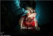 اهدای عضو بانوی نهاوندی جان چند بیمار را نجات داد
