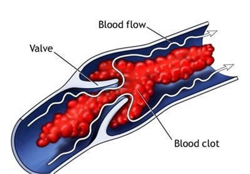 Surprise Finding: Blood Clots Absorb Bacterial Toxin