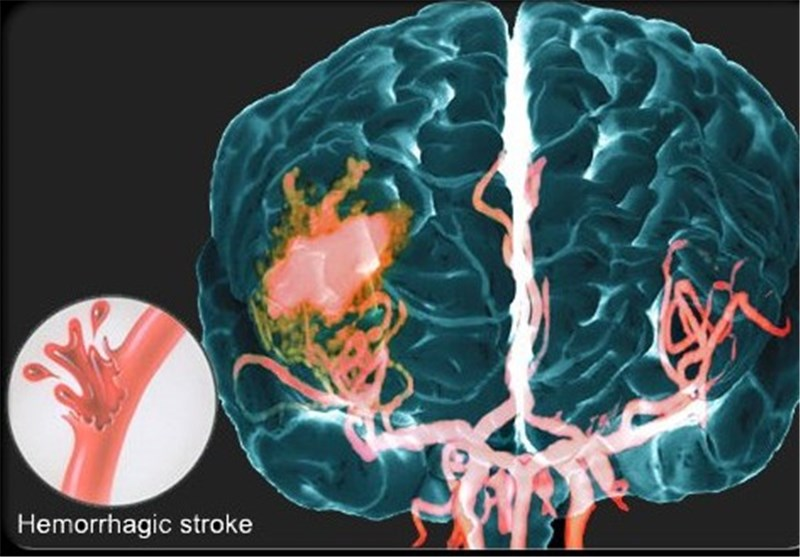New Research Supporting Stroke Rehabilitation