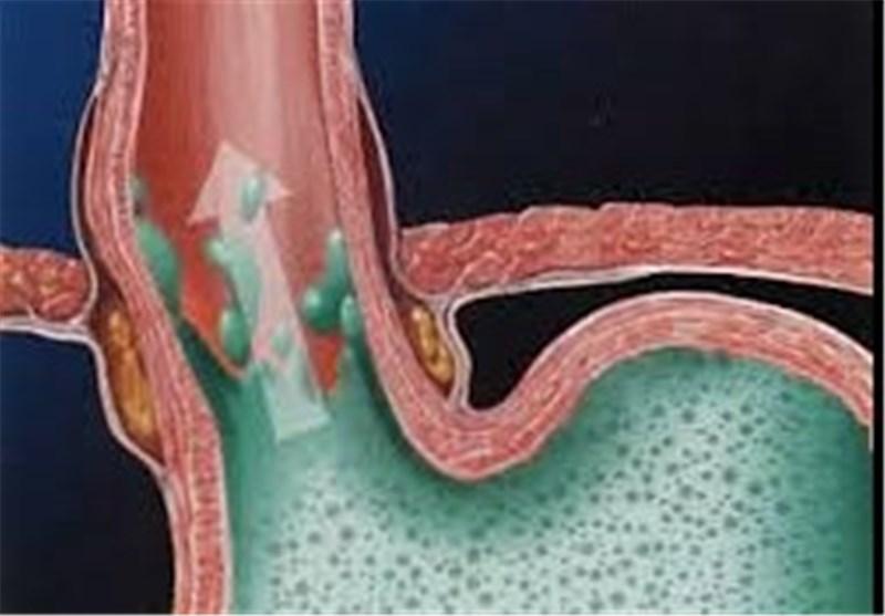 روشهایی طبیعی برای درمان «زخم معده»