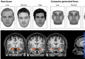 Identifying Brain Variations to Predict Patient Response to Surgery for OCD