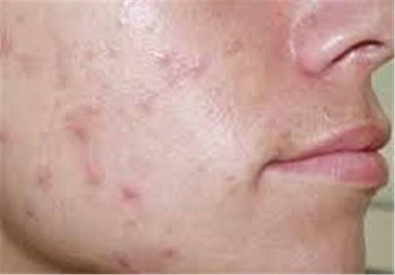 جوش پوست