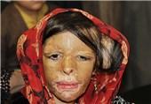 جزئیات جدید درمان بچههای شین آباد/دانشآموزانی که 185 بار جراحی شدند