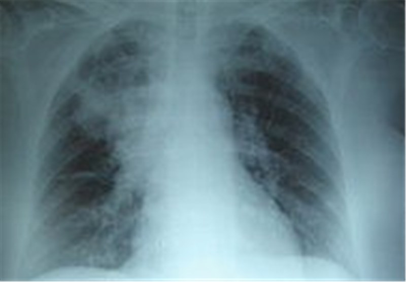 Cystic Fibrosis Lung Infection: Scientists Open Black Box on Bacterial Growth