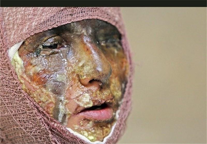 کرمانشاه| متهم اسیدپاشی در اسلامآباد غرب دستگیر شد