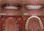 """فریب مردم به اسم """"ایمپلنت کامل دندان"""" در یک روز!"""