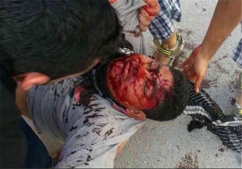 Picture of a Bahraini protester injured in clashes with regime forces on Friday.