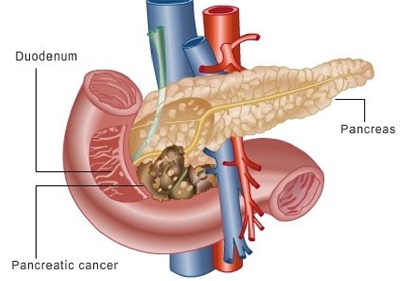 Research Points To New Treatment For Pancreatic Cancer Tasnim News
