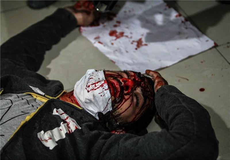 گزارش تکاندهنده فرانسویها درباره بحرین؛ شکنجههای قرون وسطایی در زندانها ادامه دارد