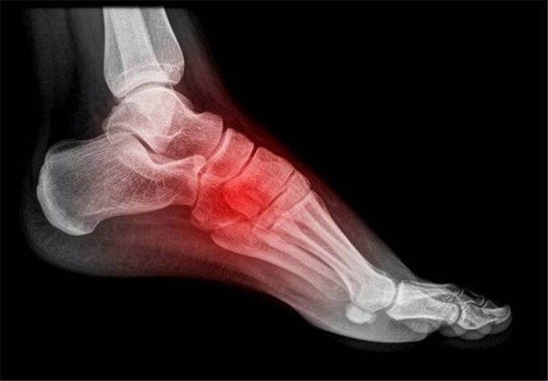 Interventional Radiology Treatment Relieves Chronic Plantar Fasciitis