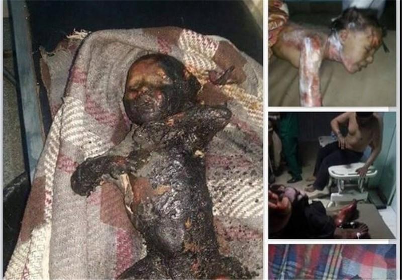 Yemen Savaşı Çocukları Vuruyor