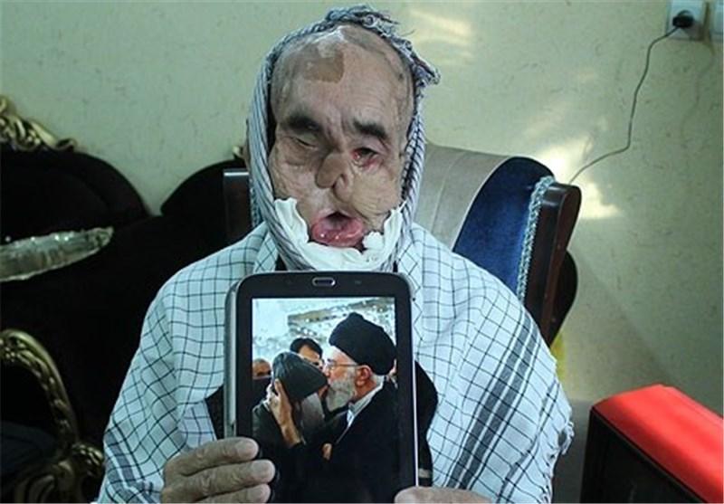 حاج رجب محمدزاده در بیمارستان امام حسین(ع) مشهد بستری شد