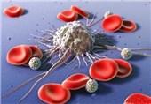 برای نخستین بار در ایران؛ درمان سرطان خون و بیماریهای خونی در شیراز امکانپذیر شد
