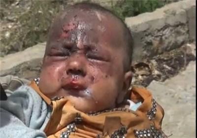 یمن: آل سعود کی جانب سے مسلط کردہ تین سالہ جنگ کے دوران 85 ہزار بچے شہید ہوئے، رپورٹ