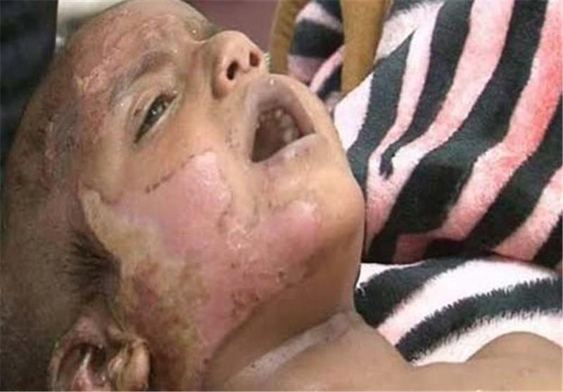 یمن کودکان سوخته