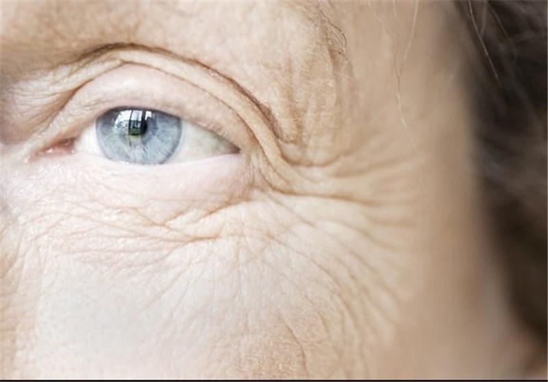 همه چشم آبیها جد مشترک دارند