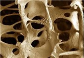 شکستگیهای مرگبار با پوکی استخوان