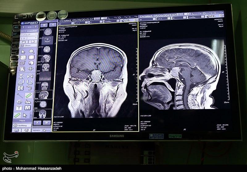 تومور 8 سانتی از سر کودک سه ساله قزوینی خارج شد