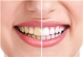 """علت""""پوسیدگی دندان"""" چیست؟"""