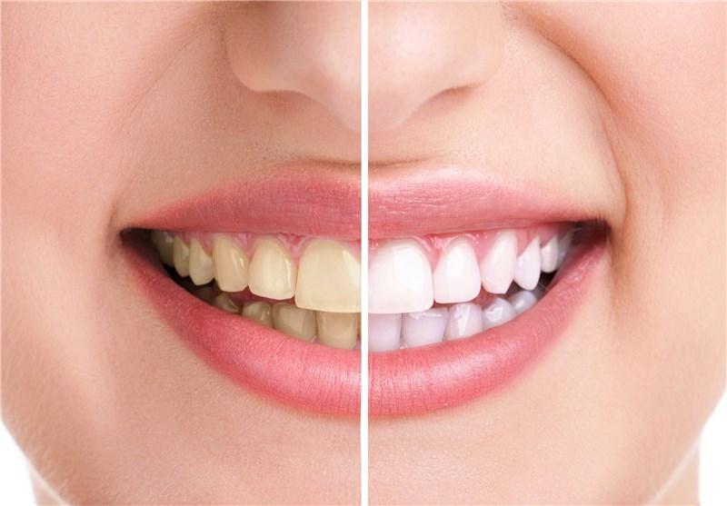 مشکلات دهان و دندان باعث سکته مغزی می شوند