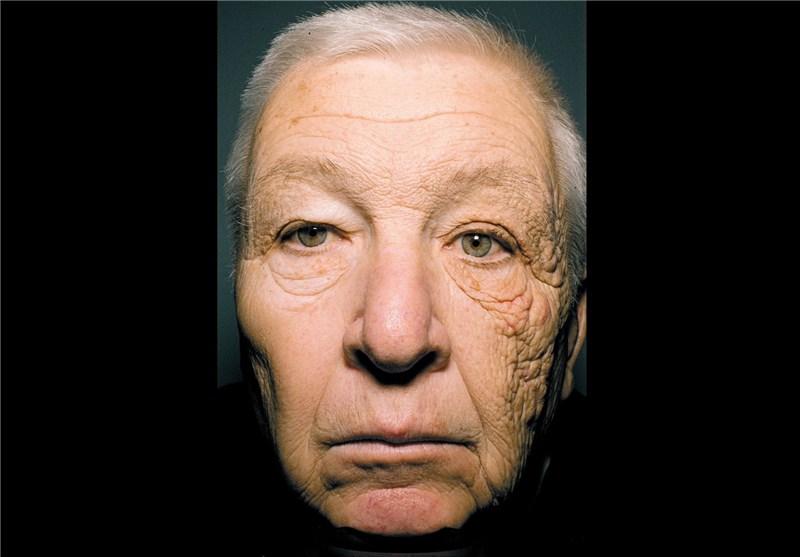 سرطان پوست در سمت چپ صورت رانندگان