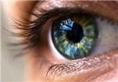 California Scientists Develop Cataract-Dissolving Eye Drops