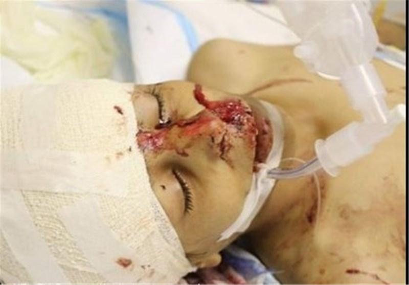 المستشفى السعودی الألمانی فی صنعاء یعمق جراح الشعب الیمنی بقتل فتى یمنی أصیب بشظیة