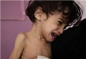 تصاویری تکان دهنده از سوء تغذیه کودکان یمنی