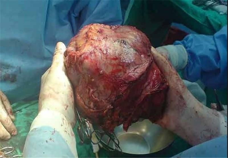 139408141638037576458114 تومور ۱۰کیلویی در بدن یک زن در کرج