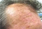 ضایعه پوستی