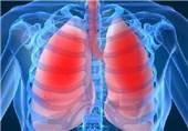 سرطانهای دستگاه تنفسی چگونه ایجاد میشود؟