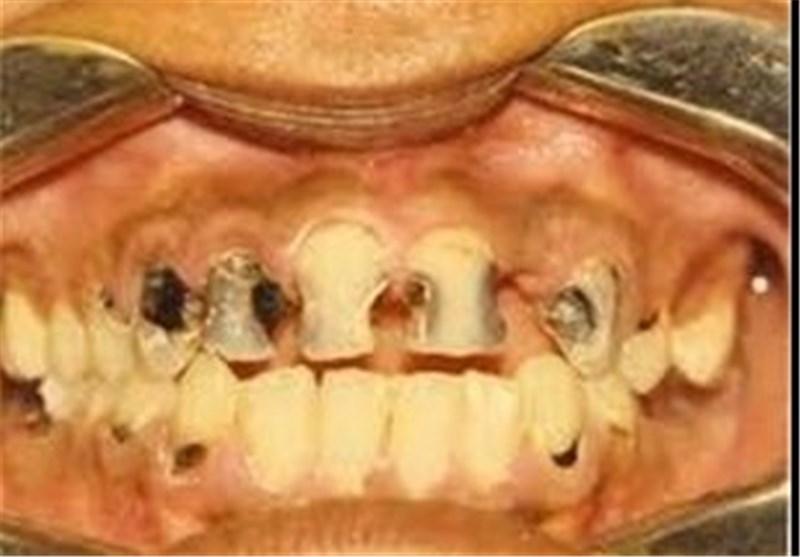 """«یک سطل دندان!» """"پوسیدگی و کشیدن""""،عاشقانههای دندانی ایرانیها"""