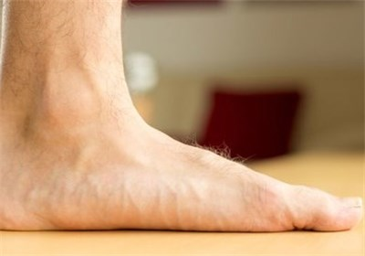 توصیه هایی برای افرادی که کف پای صافی دارند
