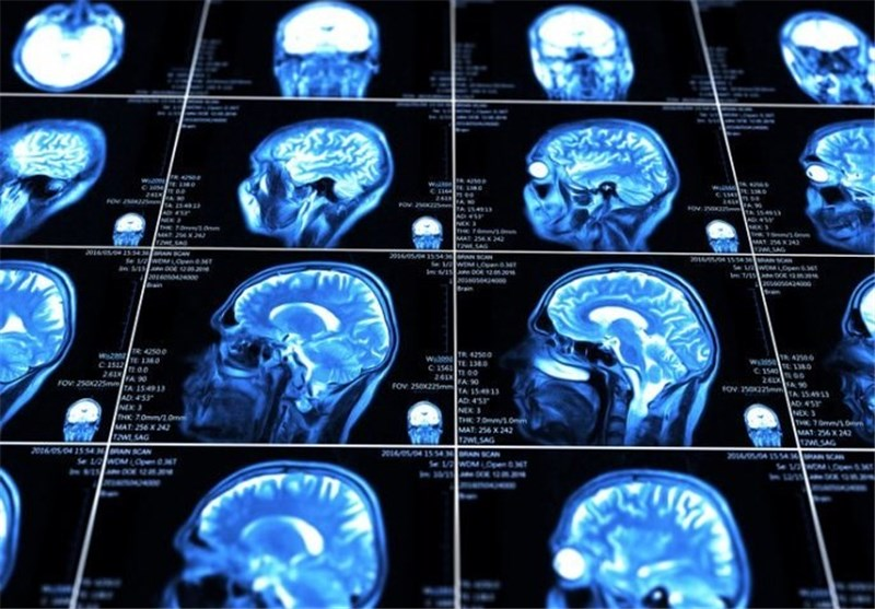 New Tech Could Deliver Drugs to Brain Injuries