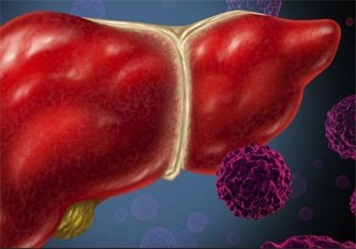 بیماری هپاتیت C تا سال 1410 در کشور ریشهکن میشود