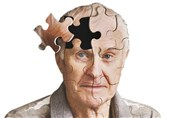 New Insight into How Alzheimer's Disease Begins